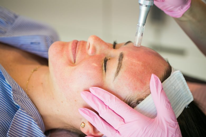 Call me Lore on What is Microneedling and what are its benefits
