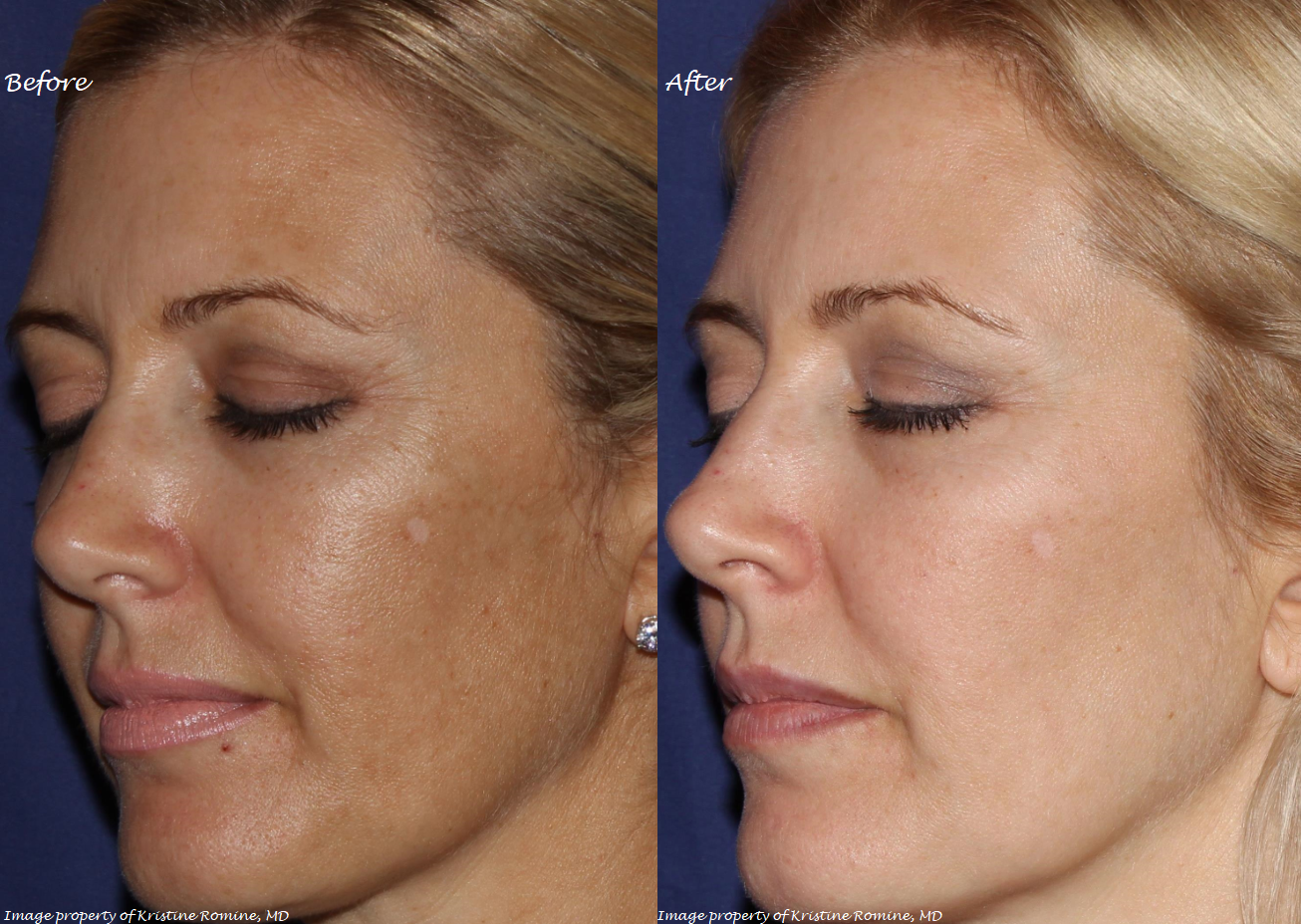 Call Me Lore's Dr. Kristine Romine What is Melasma How to Treat Melasma